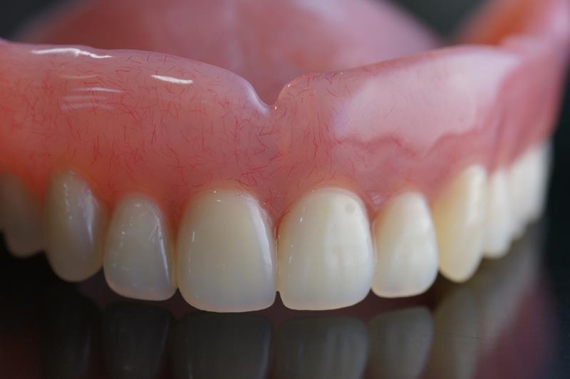 Dentures St. Louis, MO